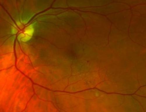 Your Retinas